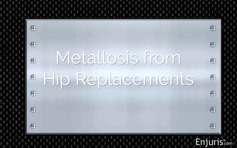 Hip Replacement Metallosis