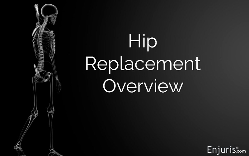 Hip Replacement Surgery: Types, Procedures, Implants, Lawsuits