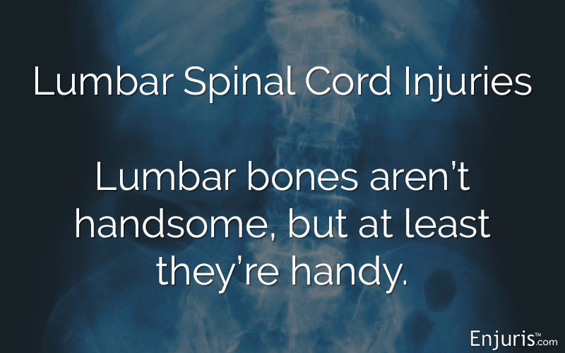 X-Ray, lumbar spine