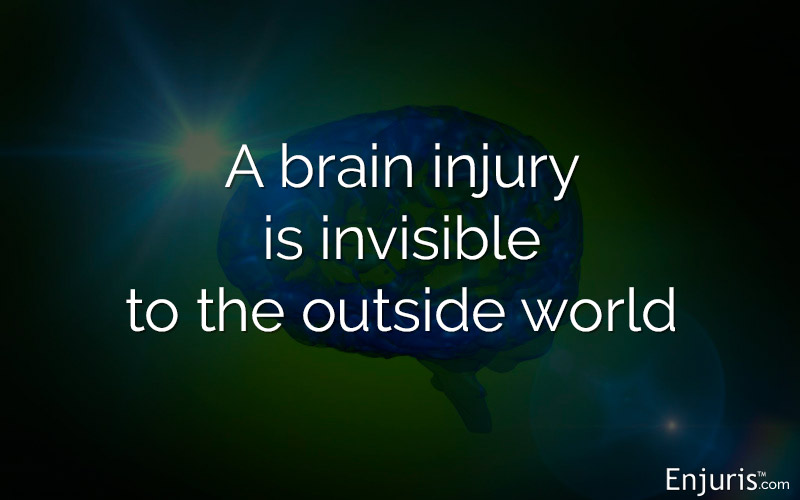 brain injuries concussions
