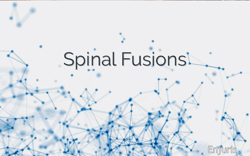 Spinal Fusions