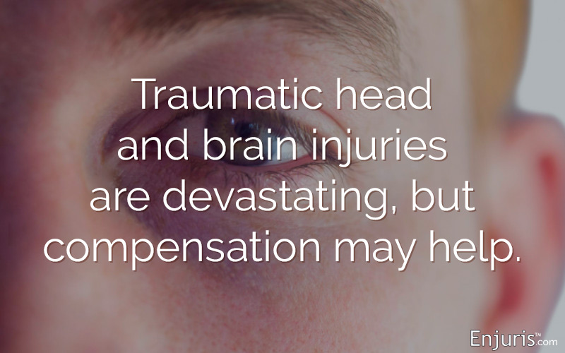 Texas head and brain injury lawsuits
